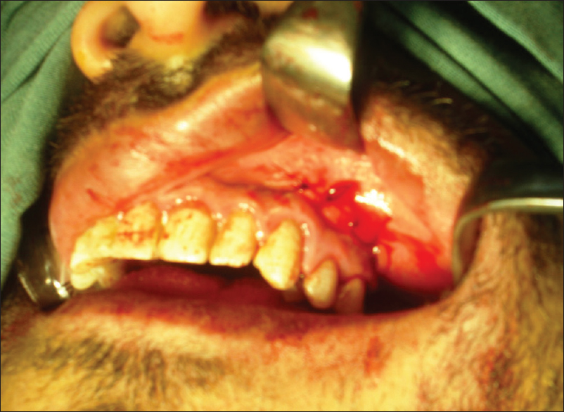 Management of iatrogenically exposed maxillary sinus with a