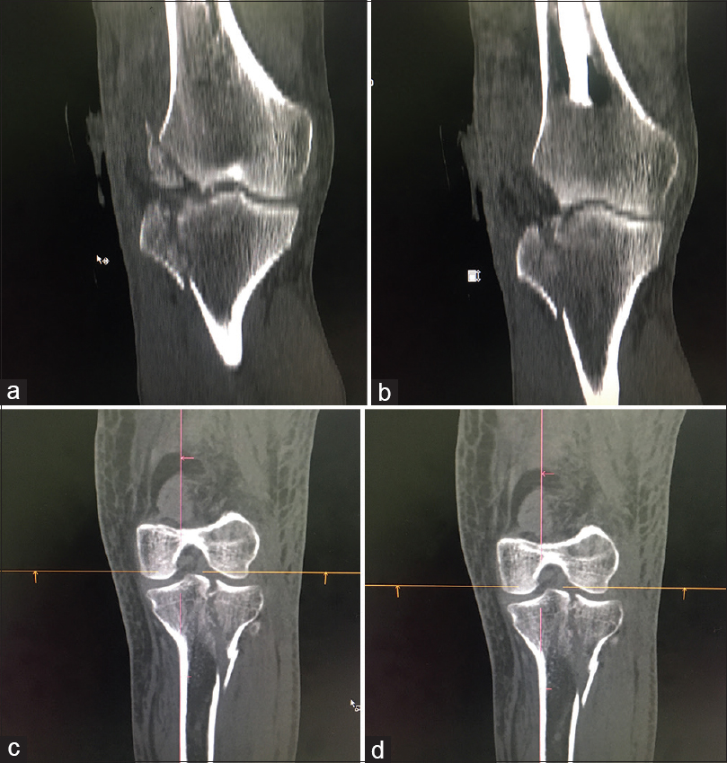 a9e8e85f24 ... lateral tibial plateau fracture. Figure 1: (a) Coronal reformation of  the tibia showing the fracture of lateral.