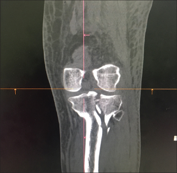 949829e8e0 Figure 2: Schatzker's Type II fracture – lateral tibial condylar fracture  with more than 4 mm depression.