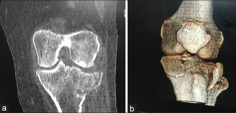 fa248d9bff Figure 4: (a) Multi-detector computed tomography image displaying the  Schatzker's type IV fracture – medial plateau fracture. (b) Volume  rendering image of ...