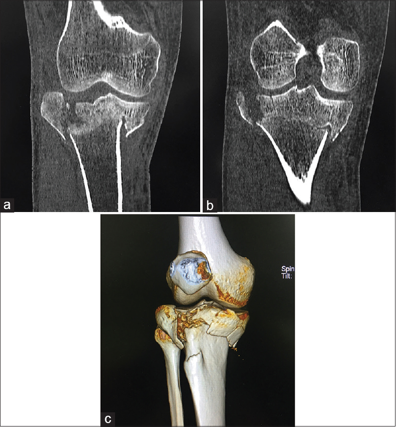 48c791fff0 Figure 5: (a) Schatzker's type V fracture including both tibial plateaus.  (b) More posterior coronal image of the same patient as in Figure 5a showing  ...