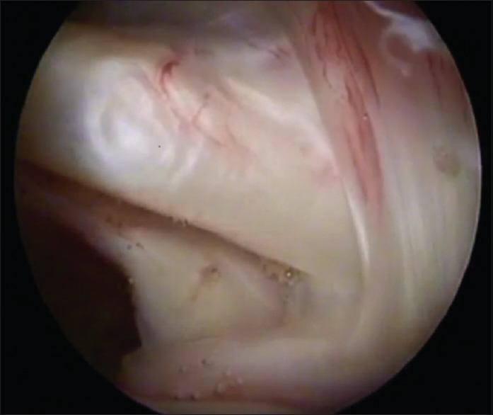 Figure 1: Arthroscopic view of the insertion of subscapularis tendon on the humeral head.